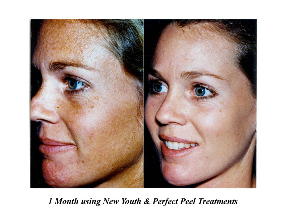 New Youth and Perfect Peel